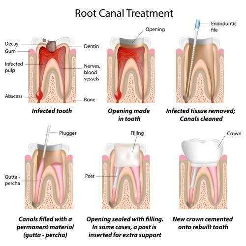 how root canals are treated
